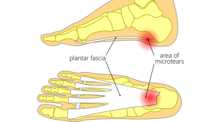 What Can I Do If I'm Suffering From Plantar Fasciitis? - Bradley Physio